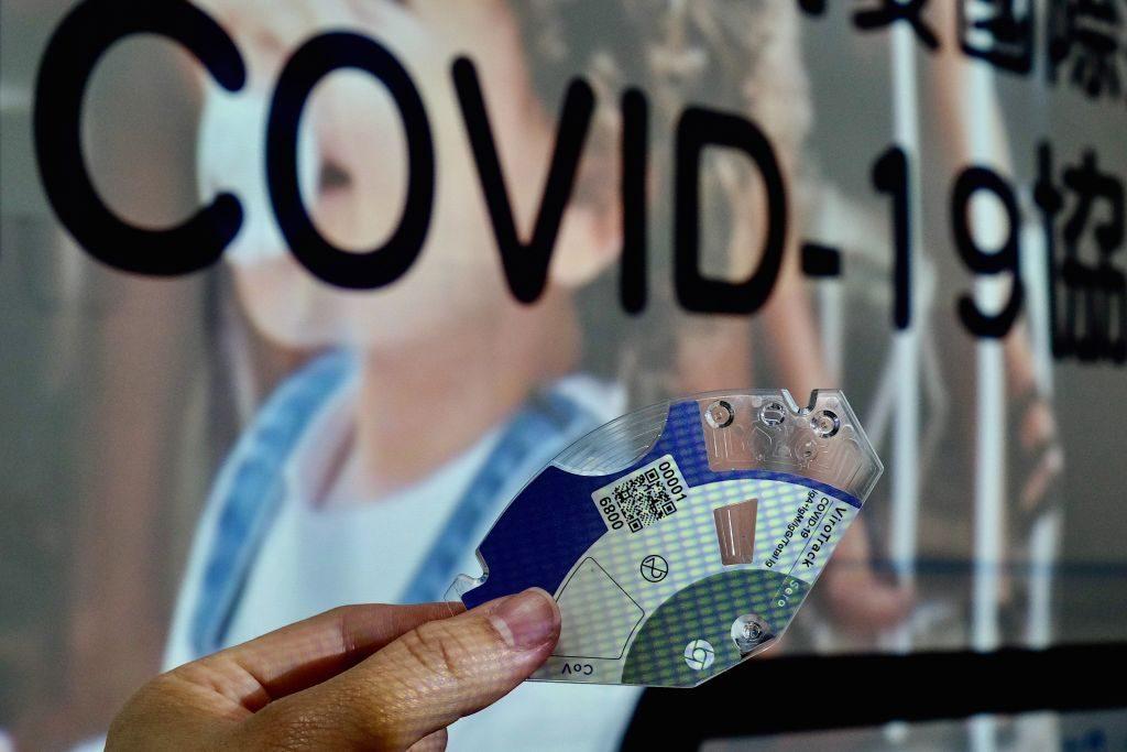 Informe epidemiológico del COVID-19: La mitad de los contagiados tiene menos de 38 años