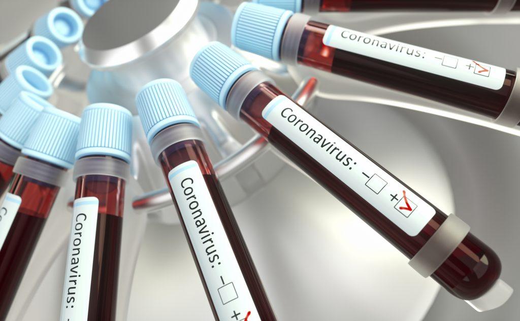 Minsal informó que hubo 4.207 nuevos casos y ya son 122.499 los contagiados de coronavirus