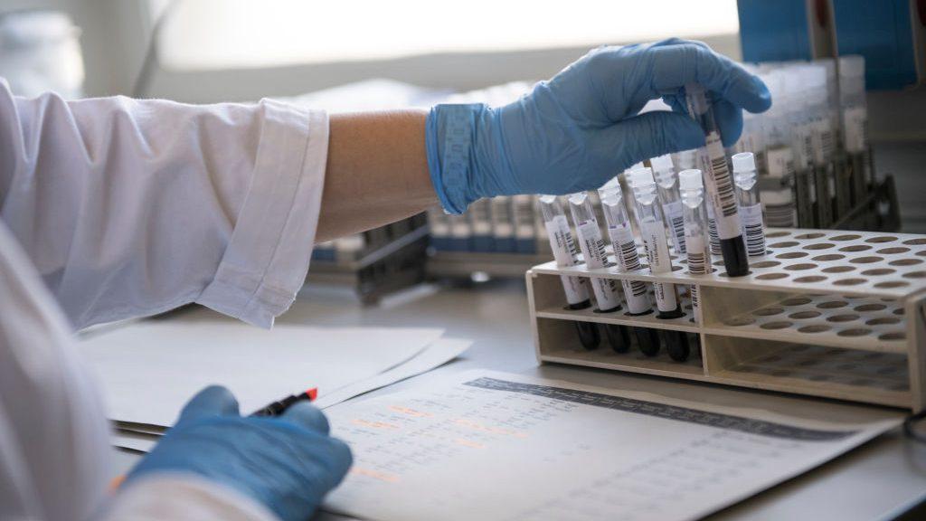 Informe Epidemiológico: DEIS registró 17.075 fallecimientos asociados al Covid-19 entre casos confirmados y sospechosos