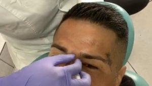 """""""Kike"""" Acuña sorprendió a todos con cambio de look: Se realizó un tratamiento de botox"""