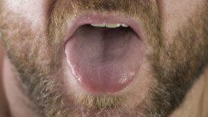 """""""Lengua covid"""": Estudio describe nuevo síntoma de pacientes con coronavirus"""