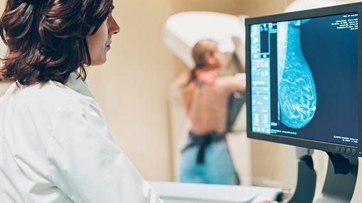 """Cáncer de mama: Sociedad Chilena de Mastología advirtió que """"las campañas deberíamos hacerlas de enero a diciembre"""""""